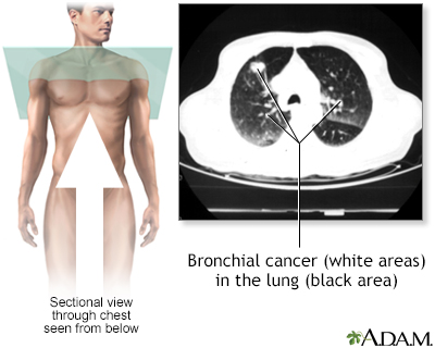 Bronchial cancer - CT scan