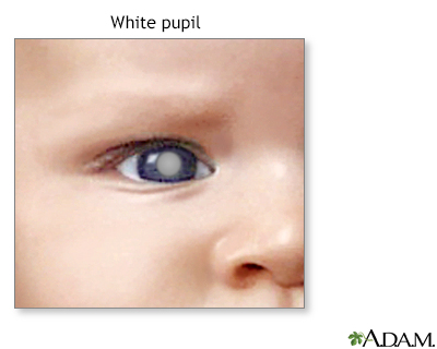 White spots in the pupil