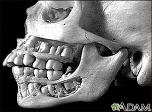Teeth, adult - in the skull