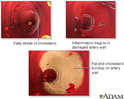 Arterial plaque build-up