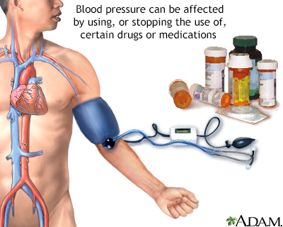 Drug induced hypertension