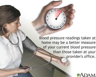 Monitoring blood pressure