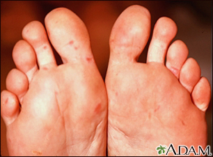 Hand, foot, and mouth disease on the soles