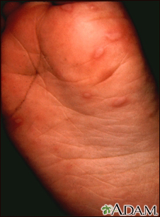 Hand, foot, and mouth disease on the foot
