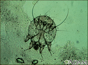 Scabies mite, photomicrograph