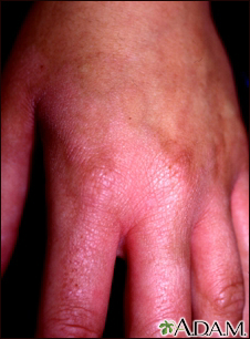 Photocontact dermatitis on the hand
