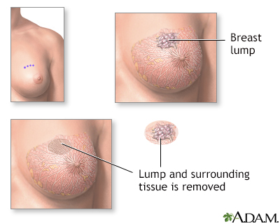Excision of breast lump
