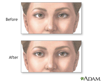 Before and after strabismus repair