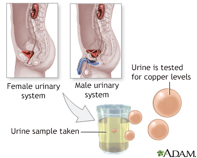 Copper urine test