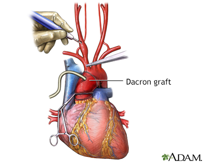 Dacron graft placement