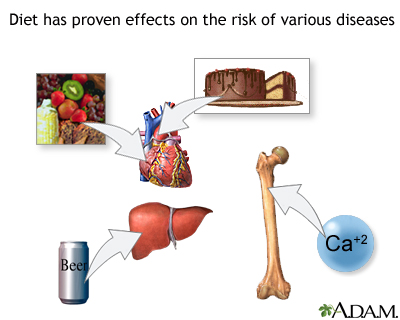 Diet and disease prevention