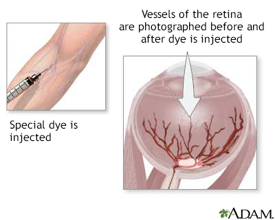 Retinal dye injection