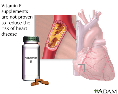 Vitamin E and heart disease