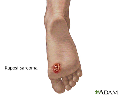 Kaposi sarcoma on foot