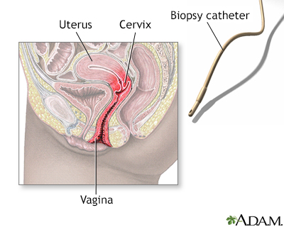 Endometrial biopsy