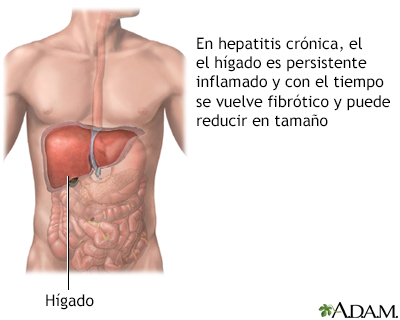 Hepatitis agresiva