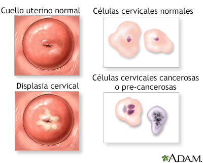Neoplasia cervical