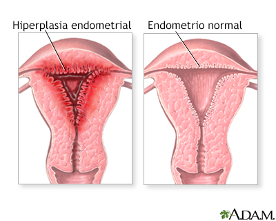 Periodos menstruales anormales