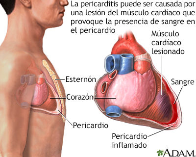 Pericarditis post-IM