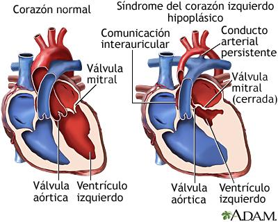 partes del corazon. Síndrome del corazón izquierdo
