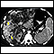 Hepatocellular cancer, CT scan